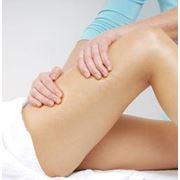 Антицеллюлитный массаж фото