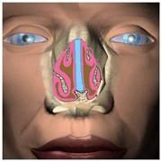 Аденоидэктомия+пластика нижних носовых раковин фото