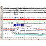 Диагностика обструктивного апноэ сна фото