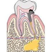 Endodontie фото