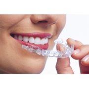 Отбеливание зубов лазерное в Кишиневе фото