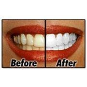 Отбеливание зубов по технологии Zoom 3 фото