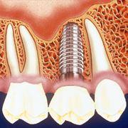 "Имплантация зубов в Кишиневе (Молдова) ""ClasicDent"" фото"