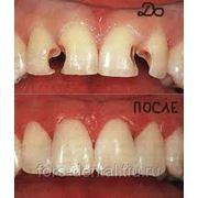 Художественная реставрация зуба фото