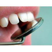 Протезирование зубов в Кишиневе фото