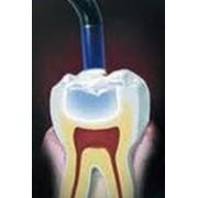 Пломбирование зубов. Стоматологический кабинет ТРИО фото