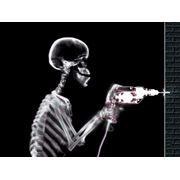 Ремонт рентгеновского оборудования фото