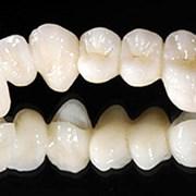 Протезирование зубов из диоксида циркония фото