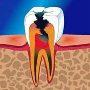 Терапевтическая стоматология. Лечение зубов фото