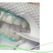 Фотоотбеливание зубов фото