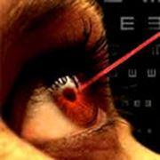 Лазерная коррекция зрения фото