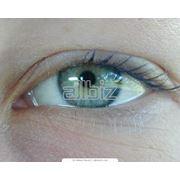 Лечение катаракты фото