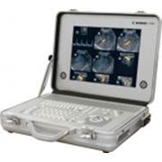 Сканер ультразвуковой 1000V фото