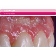 Зубные импланты фото