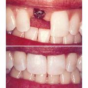 Искусственные зубы фото