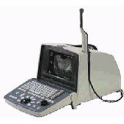 Сканер портативный ультразвуковой Merlin 1101 фото