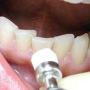 Лечение зубов по скорой помощи фото