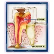 Эндодонтия лечение каналов фото
