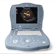Сканеры ультразвуковые портативные LOGIQ BOOK XP (GE) фото
