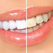 Отбеливание зубов