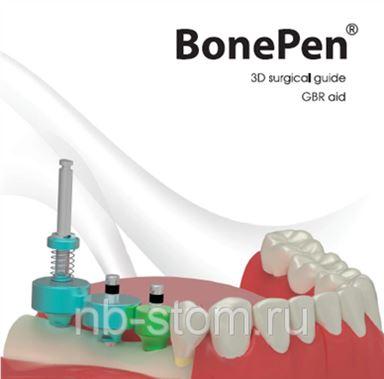 шаблон bonepen отзывы стоматологов