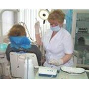 Удаление зубного камня ультразвуковым скалером фото