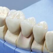 Ортопедическая стоматология (протезирование) фото