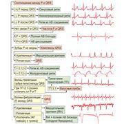 Буклет-линейка Электрокардиография. Квинтэссенция Плешков Ф. И. фото