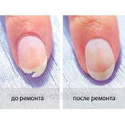 Ремонт одного ногтя фото
