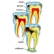 Лечение и профилактика кариеса зуба в Киеве, цена. Кариес фото