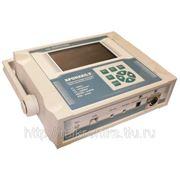 Прибор для контроля нервно-мышечного аппарата «ХРОНАКС-7» фото