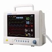 Монитор прикроватный Sensitec PM-9000 фото