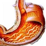 Диагностика гастродуоденита, гастрита фото