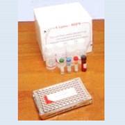 Диагностика ВИЧ-инфекции фото