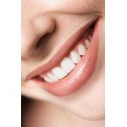 Лечение кариеса молочных зубов фото