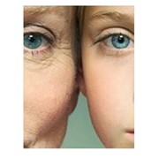 Лазерное удаление морщин, омоложение лица, Elos-омоложение, фотоомоложение в Киеве, цена фото