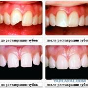 Реставрационная стоматология фото