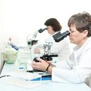 Общий анализ кала в Алматы фото
