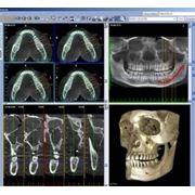 Магнитно-резонансная томография зубов фото