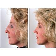 Ринопластика (пластика носа) фото
