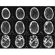 КТ головного мозга фото
