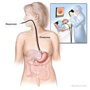 Диагностика и обследование желудочно-кишечного тракта фото