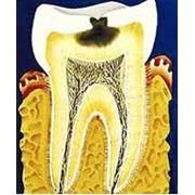 Терапевтическое лечение зубов: кариеса, некариозных поражений зубов фото