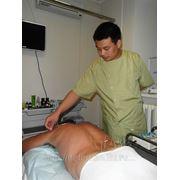 Иглорефлексотерапия фото