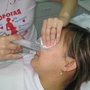 Озонотерапия фото