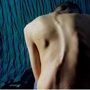 Лечение сколиоза фото