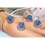 Вакуумный массаж фото