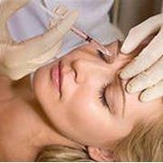Омоложение кожи и коррекция морщин. Инъекционные методики фото