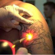 Удаление тату и татуажа (перманентный макияж) фото
