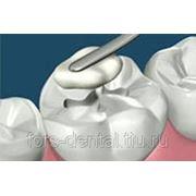 Пломбирование зуба (световая пломба) фото